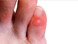 Home remedies for foot blisters | How to treat foot blister