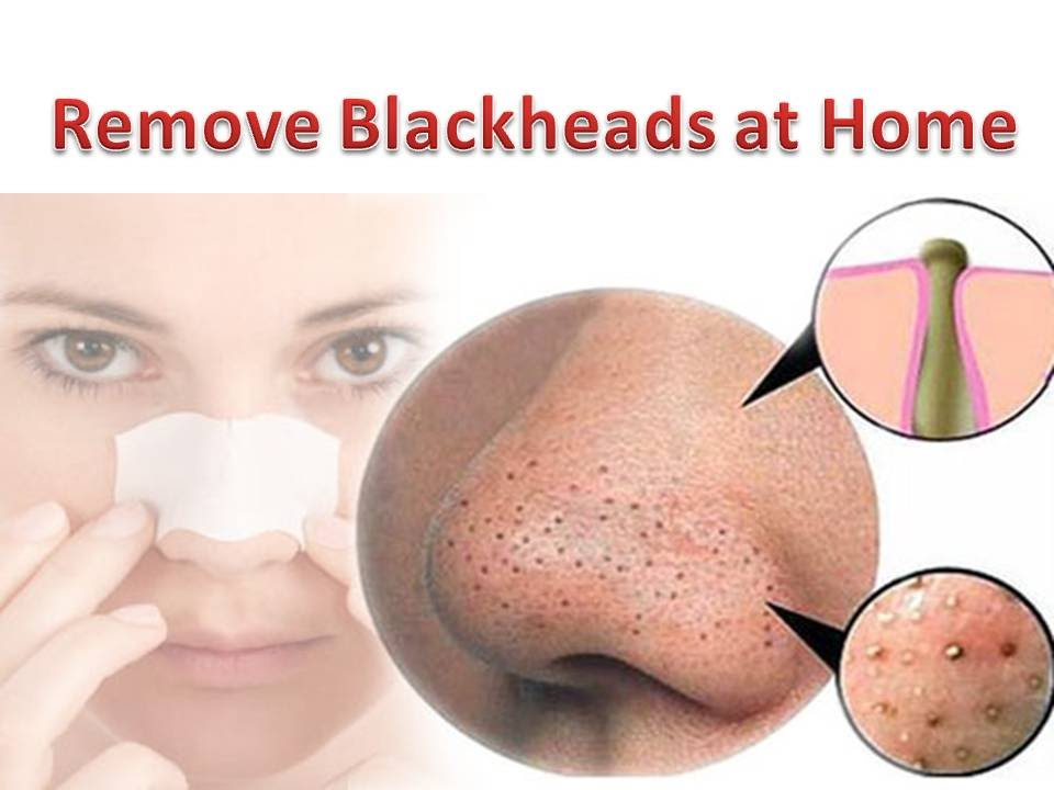 How To REMOVE BLACKHEADS From Nose | Get Rid of BLACKHEADS ...