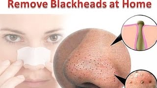 how to remove blackheads from nose   get rid of blackheads naturally at home