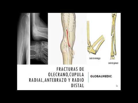 Fractura de radio Y cubito ( MONTEGGIA Y GALEAZZI Y COLLES) - YouTube