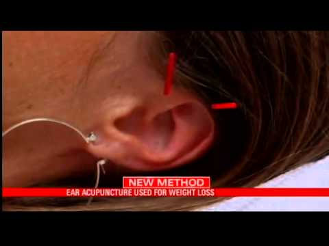 Ear Acupuncture Used For Weight Loss