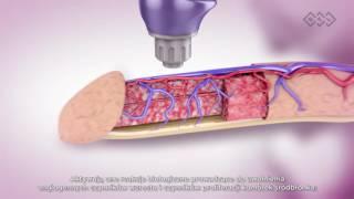 Leczenie zaburzeń erekcji falą uderzeniową - Fizjotechnologia