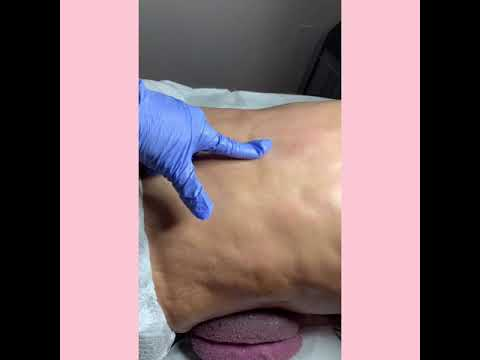 Fibrosis Treatment after liposuction