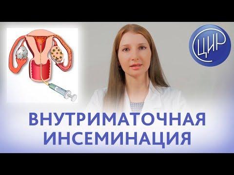 ВНУТРИМАТОЧНАЯ ИНСЕМИНАЦИЯ. Показания, противопоказания и подготовка к внутриматочной инсеминации.