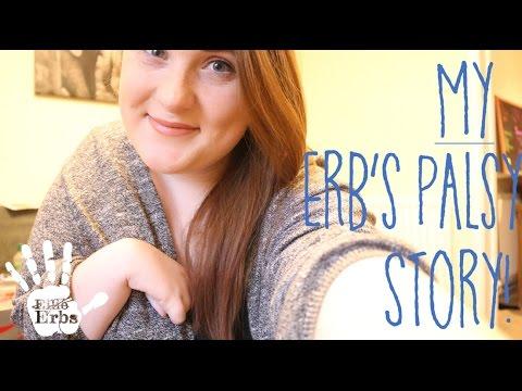 MY ERB'S PALSY STORY | Ellie Erbs