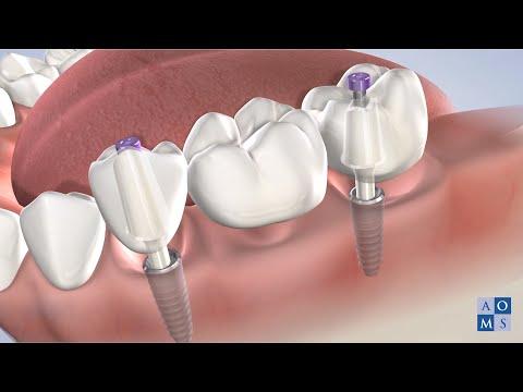 Instrucciones Post-Operatorias: Implantes Dentales | Amarillo Oral & Maxillofacial Surgery