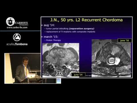 Carbon Fiber Reinforced Composite Implants in Spine Oncologic Surgery, Dr. Stefano Boriani
