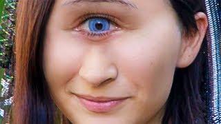 Dünyadaki En Garip Genetik Mutasyonu - Gözlerinizden Şüphe…