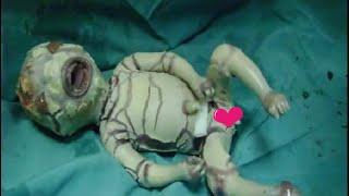 【グロ注意】ハーレクイン魚鱗癬の子ども 蔑称 悪魔の子 ハーレークイン症 検索動画 4