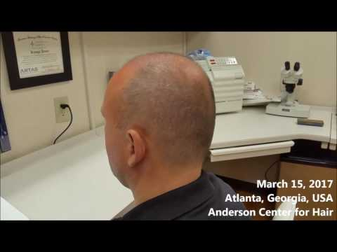 How will you look 12 days AFTER an ARTAS® robotic hair transplant?