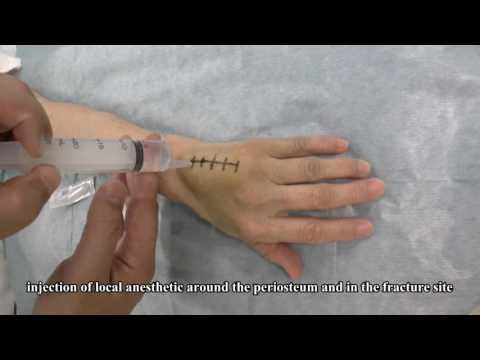 Wide awake metacarpal surgery; anesthetic technique