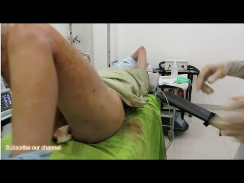 Liposuction Fat Transfer to buttocks: Breast Augmentation from YouTube · Duration:  4 minutes 42 seconds