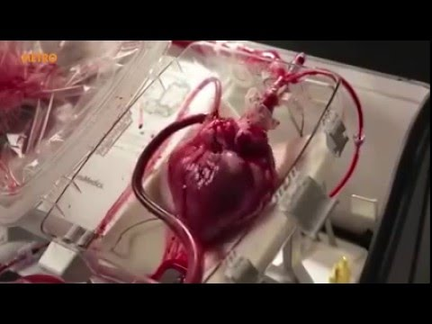Heart Can Work Outside Of Your Body-Impossimble