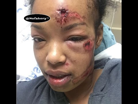 Bloody girl fight ends a horrible tragedy (Caution)