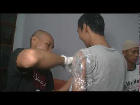 Program Penghapusan Tatto di Bandung