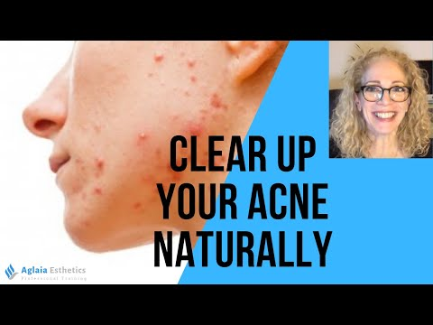 6-steps-how-to-clear-up-your-acne-naturally