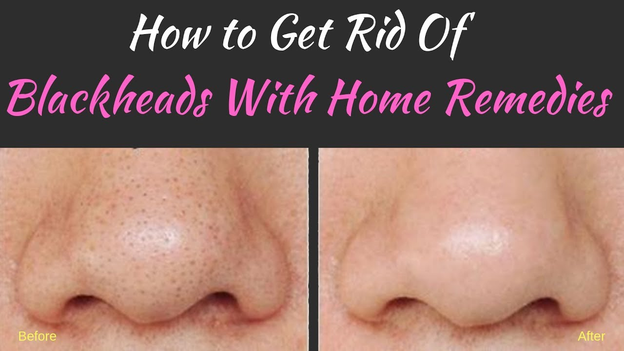 How To Get Rid Of Blackheads With Home Remedies Youtube