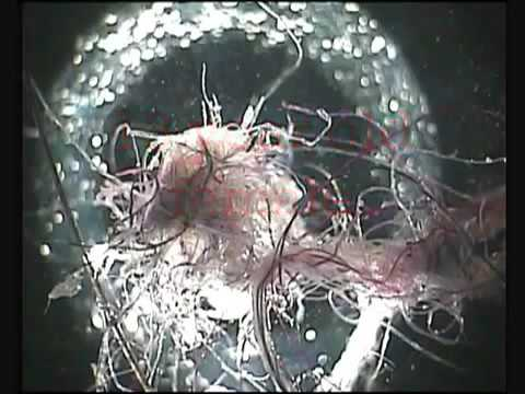 Chemtrails Contain Live Organisms: Bio Warfare Attack!!