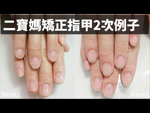 矯正指甲兩次加卸甲|二寶媽指甲改善的例子|問題指甲矯正處理