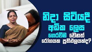 නිදා සිටියදී අධික ලෙස ගෙරවීම වෙනත් රෝගයක ප්රතිඵලයක්ද?   Piyum Vila   29 - 06 - 2021   SiyathaTV Thumbnail