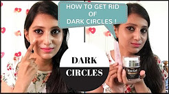 How to get rid of DARK CIRCLES - My story | Tear Trough Depression ??