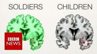 The PTSD brains of children & soldiers - BBC News