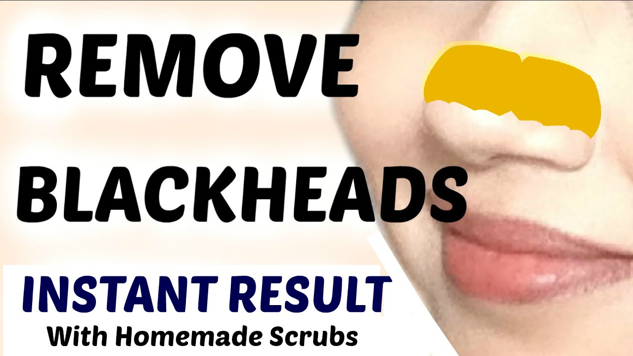 Remove Blackheads Naturally In Hindi
