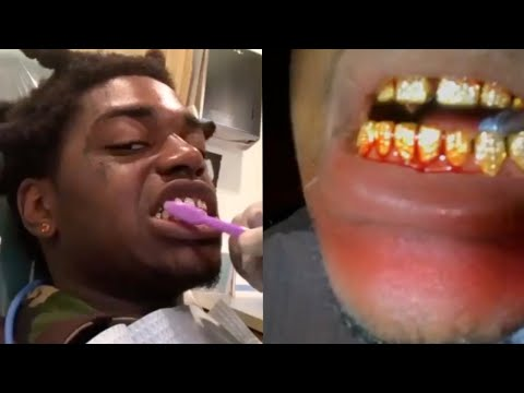 Kodak Black Diamond Teeth Wont Stop Bleeding At Dentist Office