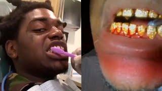 Kodak Black Diamond Teeth Wont Stop Bleeding At Dentist Office