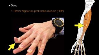 forearm flexor muscles
