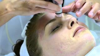 San Diego Best Facial Center, Savvy Skin Spa