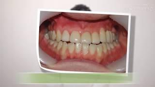 광진구건대치과 치아성형의 재치료