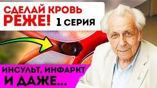 ТИХИЙ УБИЙЦА Профилактика сердечно сосудистой системы Разжижать Густую кровь без таблеток 1 серия