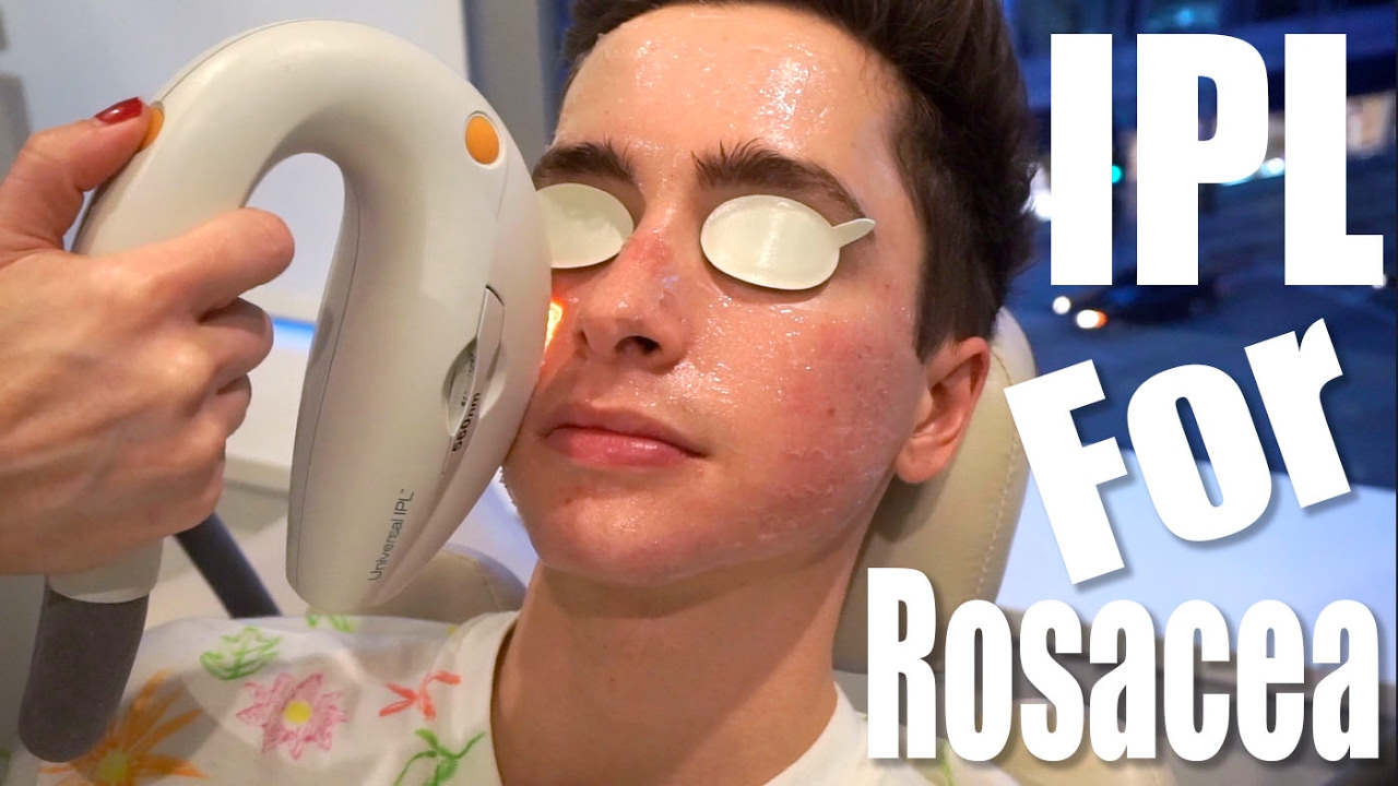 Rosacea Treatment With Ipl Laser Ft Eric Smith Youtube