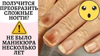 Получится ли преображение ногтеи