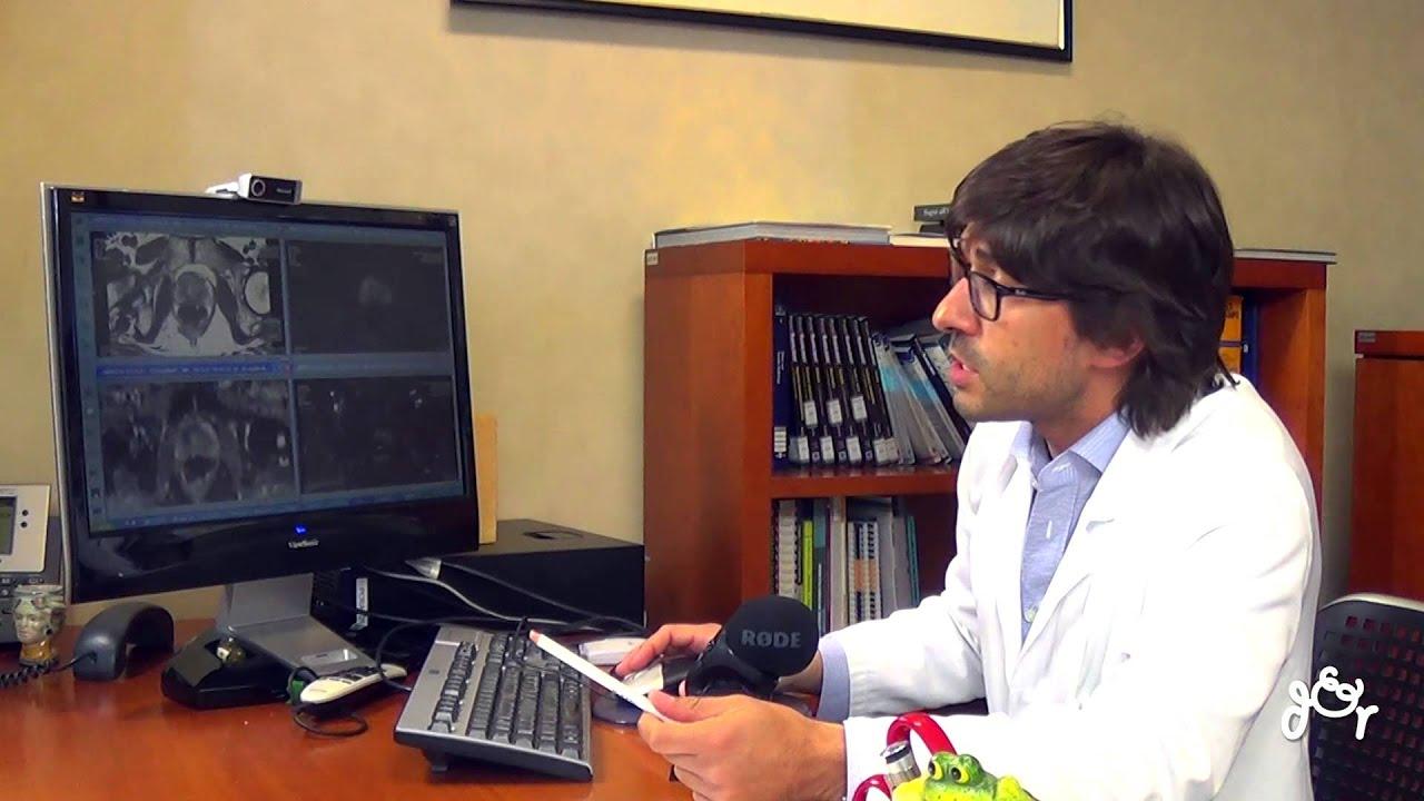 risonanza magnetica multiparametrica prostata milano en