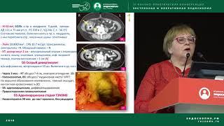 Неосложненный дивертикулез: диагностика, лечение, профилактика и прогноз