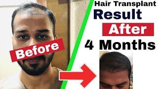 Case Study : 4 Months Hair Transplant Result Timeline || Fue Hair Transplant Results