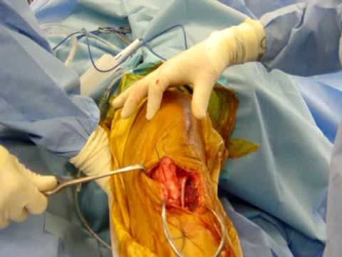 intraoperative stimulation of the femoral nerve - youtube, Muscles