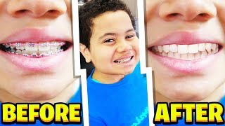 MY LITTLE BROTHER FINALLY REMOVES HIS BRACES! *Life Changing transformation*