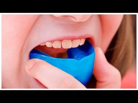 Неправильный прикус зубов, как выровнять зубы легко и быстро, капа для зубов отзывы покупателей