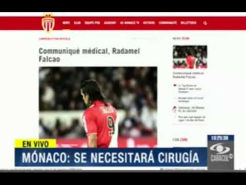 ☻ AS Monaco Confirms Falcao GarcIa Injury