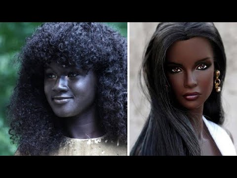 10 PEOPLE WITH UNIQUE SKIN COLOR