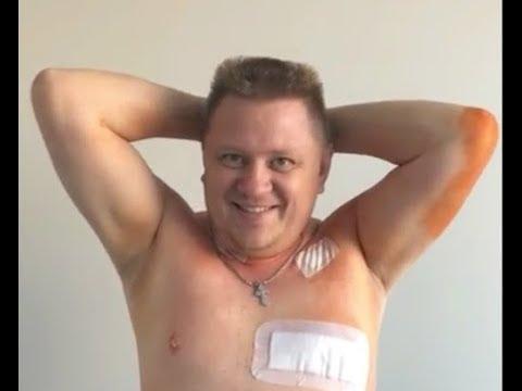 Фізична активність на 5-й день після операції на серці