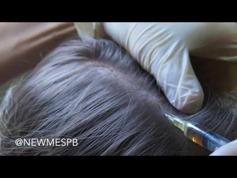 Мезотерапия для волос - что это такое, препараты