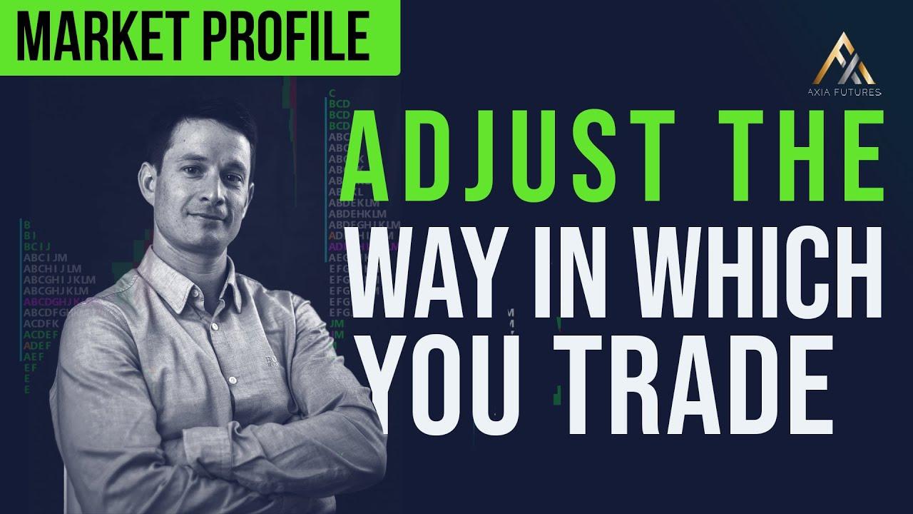 ar tradeking turi dvejetaines galimybes