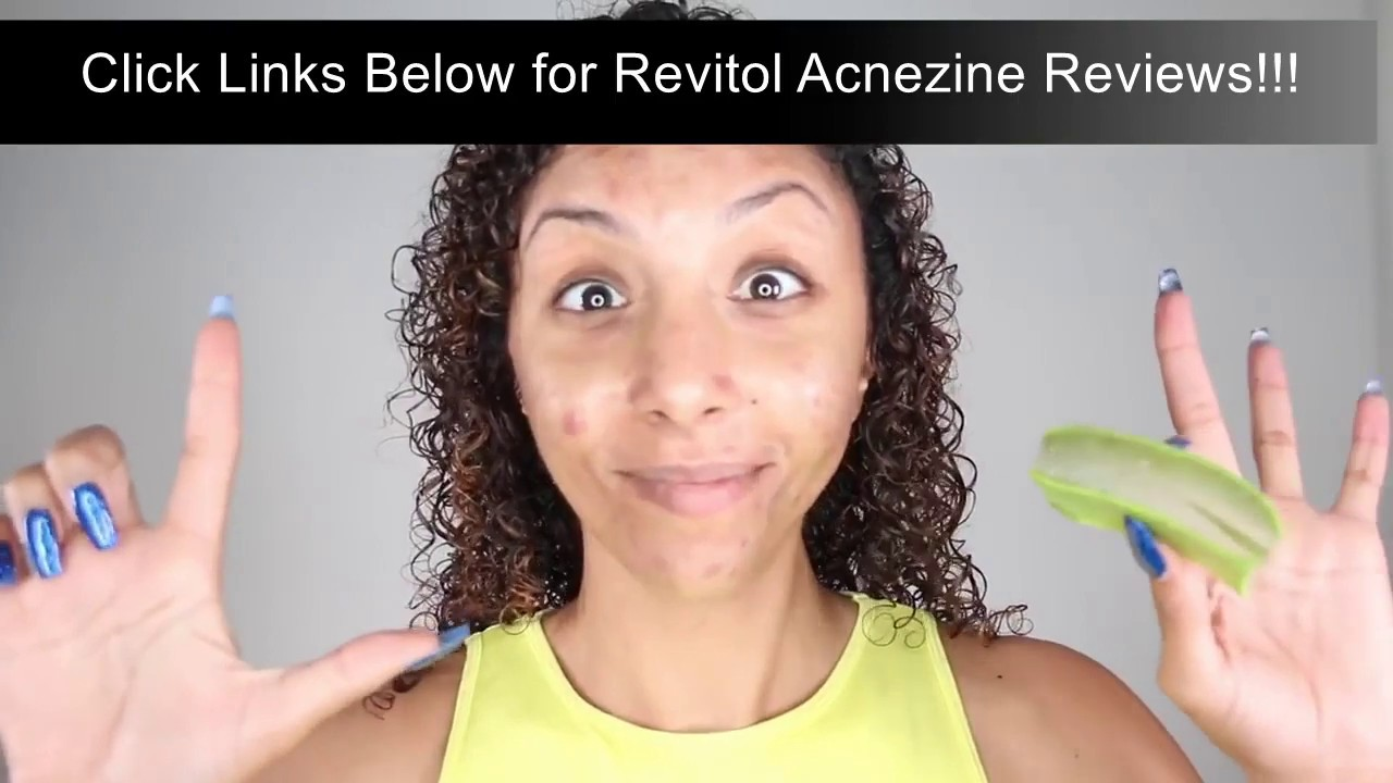 Best Cream For Acne Scars And Dark Spots Revitol Acnezine Cream