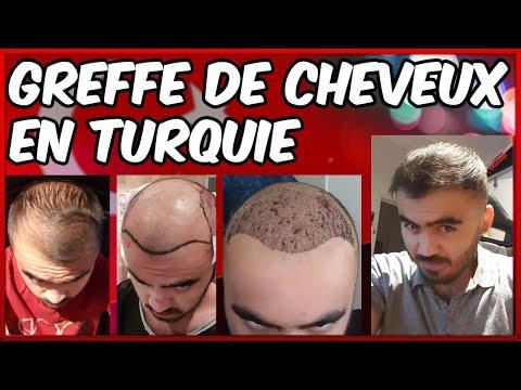 GREFFE DE CHEVEUX EN TURQUIE, LES ERREURS A NE SURTOUT PAS FAIRE