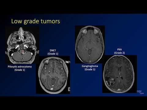 Brain Tumors More Prevalent in Better Educated, Wealthier Folks