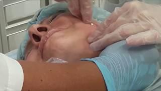 Студенты учатся: Семинар по применению МЕЗОНИТЕЙ для ЛИФТИНГА  нижней части лица.